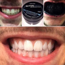 Activated Carbon Black Powder for Teeth Whitening - Before/After